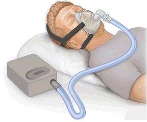 Eine Darstellung über die Funktionsweise der CPAP-Beatmung